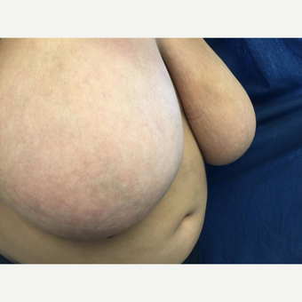 25-34 year old woman treated with Breast Reduction before 3629370