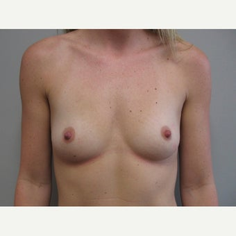 25-34 year old woman treated with Breast Augmentation before 2233681