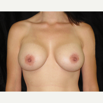 25-34 year old woman treated with Breast Augmentation after 3446724