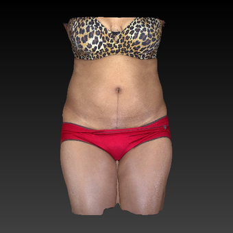 45-54 year old woman treated with SculpSure after 3814611
