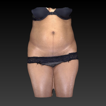 45-54 year old woman treated with SculpSure before 3814611