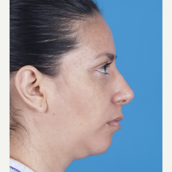 35-44 year old woman treated with Rhinoplasty after 3115224