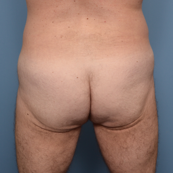 45-54 year old man treated with Butt Implants before 3005798