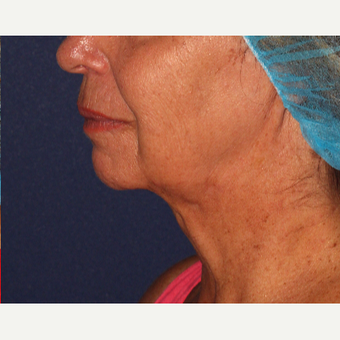 55-64 year old woman treated with Kybella after 3137143