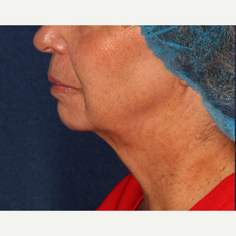 55-64 year old woman treated with Kybella before 3137143