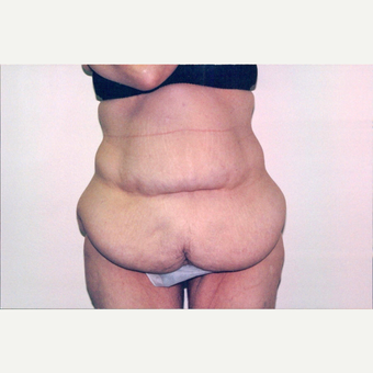 45-54 year old woman treated with Body Lift before 2838296