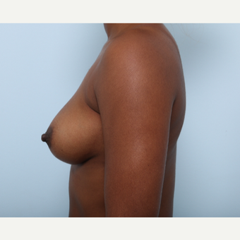 Breast Augmentation before 3345158