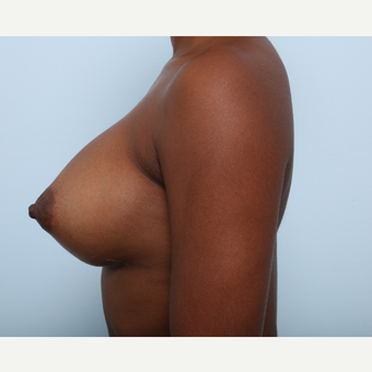 Breast Augmentation after 3345158