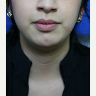 "A young woman who is thin, but was bothered by her ""double chin"" was treated with Kybella. after 3736535"
