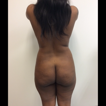 25-34 year old woman treated with Liposuction before 3816344