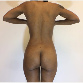 25-34 year old woman treated with Liposuction after 3816344