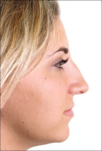 Rhinoplasty before 1023317