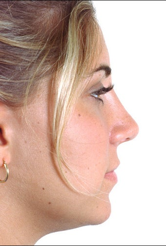 Rhinoplasty after 1023317