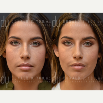 25-34 year old woman treated with Non Surgical Nose Job before 2990862