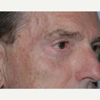 Eyelid Surgery after 3346409