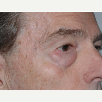 Eyelid Surgery before 3346409