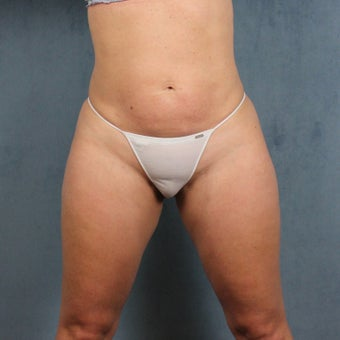 45-54 year old woman treated with Liposuction of tummy, hips, and thighs after 2222416