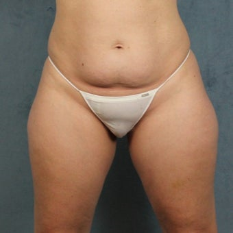 45-54 year old woman treated with Liposuction of tummy, hips, and thighs before 2222416