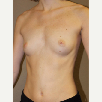 25-34 year old woman treated with Breast Augmentation before 3482977