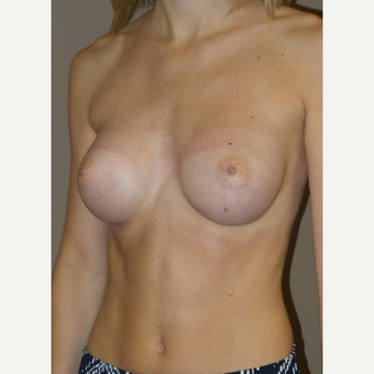 25-34 year old woman treated with Breast Augmentation after 3482977