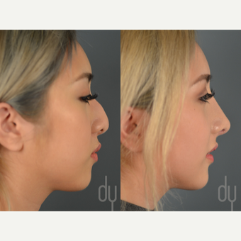 Asian Rhinoplasty with rib cartilage and DCF before 3129817