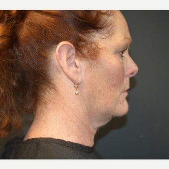55 year old woman treated with Kybella before 2058012