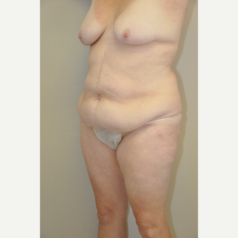 45-54 year old woman treated with Tummy Tuck before 3844194