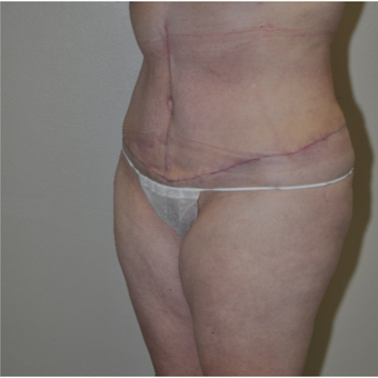 45-54 year old woman treated with Tummy Tuck after 3844194