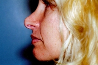 Rhinoplasty before 3446459
