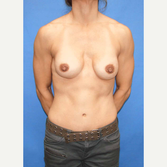45-54 year old woman treated with Breast Fat Transfer before 2921176