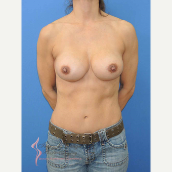 45-54 year old woman treated with Breast Fat Transfer after 2921176