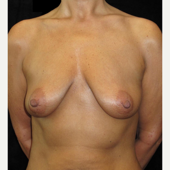 48 year old woman treated with Breast Lift with Implants before 3252553