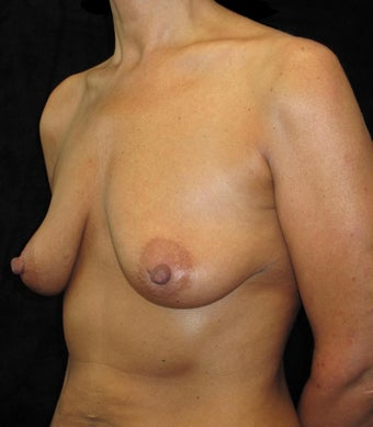 48 year old woman treated with Breast Lift with Implants 3252553