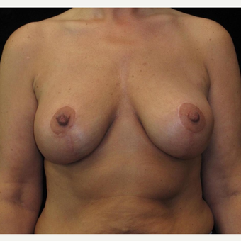 48 year old woman treated with Breast Lift with Implants after 3252553