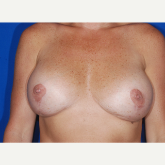 35-44 year old woman treated with Breast Augmentation after 3695029