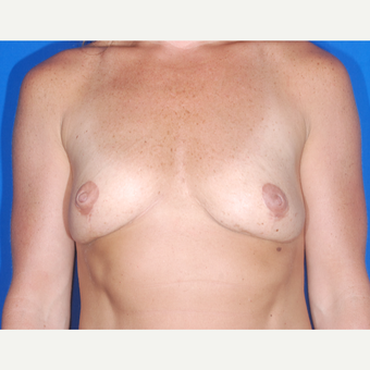35-44 year old woman treated with Breast Augmentation before 3695029