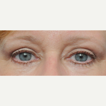 45-54 year old woman treated with Eyelid Surgery after 3697254