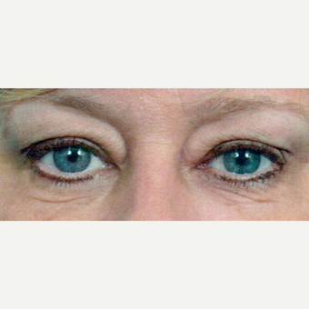 45-54 year old woman treated with Eyelid Surgery before 3697254