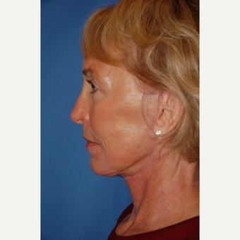 55-64 year old woman treated with Facelift after 3610798