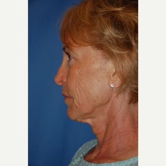 55-64 year old woman treated with Facelift before 3610798