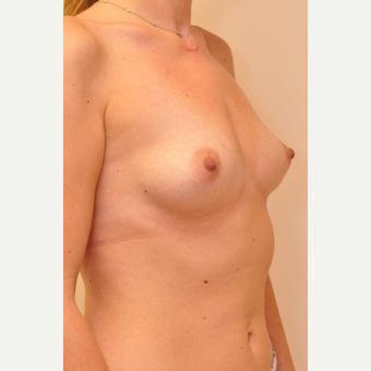 25-34 year old woman treated with Breast Implants before 3855084