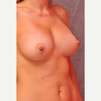 25-34 year old woman treated with Breast Implants after 3855084