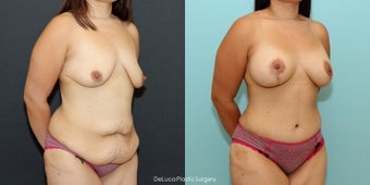Mommy Makeover (350cc Saline + Abdominoplasty) 1520474
