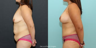 Mommy Makeover (350cc Saline + Abdominoplasty) after 1520474