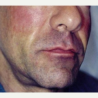 Man treated with Sculptra after 1999643