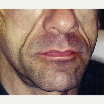 Man treated with Sculptra before 1999643