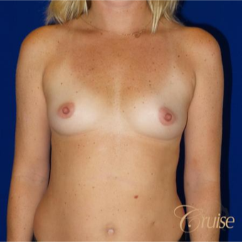 35-44 year old woman treated with Breast Implants before 3833235