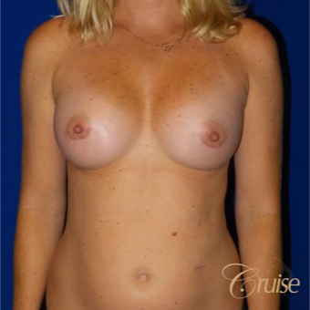 35-44 year old woman treated with Breast Implants after 3833235