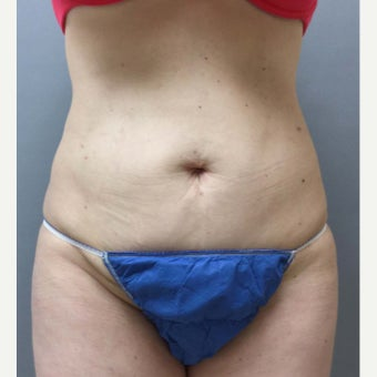 46 year old woman treated with Mini Tummy Tuck, liposuction to circumferential trunk and BBL after 1851615