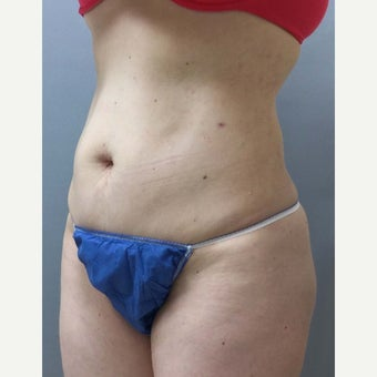 46 year old woman treated with Mini Tummy Tuck, liposuction to circumferential trunk and BBL 1851615